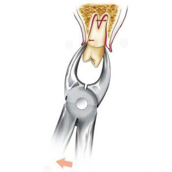 Процедура удаления зуба